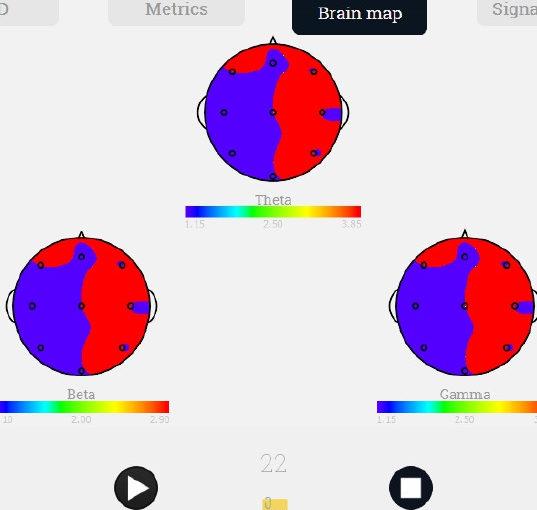 Software per l'elaborazione di segnali neurologici