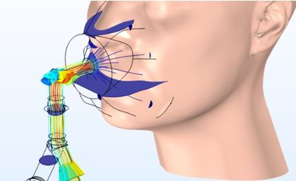 Optimizing an NIV Mask Design with Multiphysics Simulation eng
